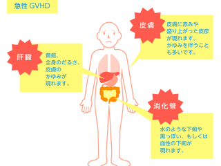 急性GVHDと慢性GVHDについて