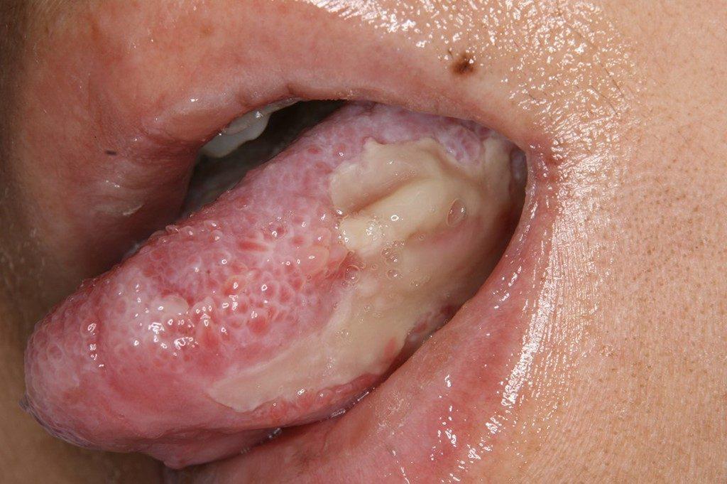 移植時の口内炎